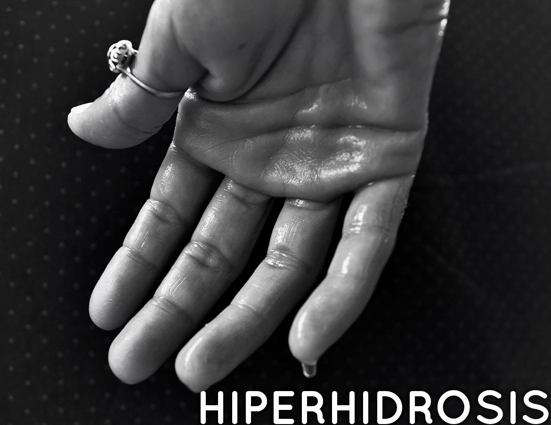 Tratamientos para la Hiperhidrosis en FLG Clinic Alicante